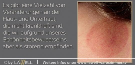 Haut- und Unterhausbildungen entfernen