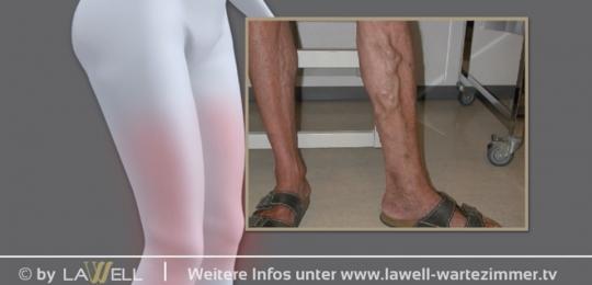 Krampfaderbehandlung mit Laser