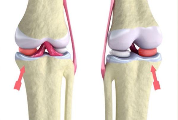 Kniegelenk - Orthopädie