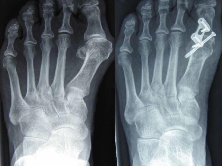 Röntgenbild Hallux valgus - nach der Operation